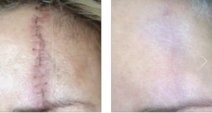 Venus Viva Scar Treatment